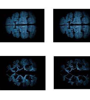 Attilio M. Varricchio, Braindrug, 2015